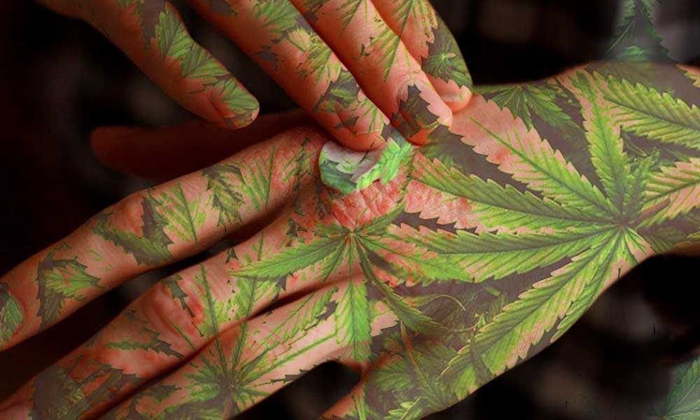 psoriasi e cannabis